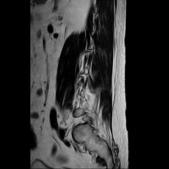 20160414 MRI:FILE16.jpg