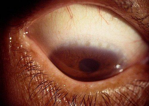 結膜炎 濾胞 性